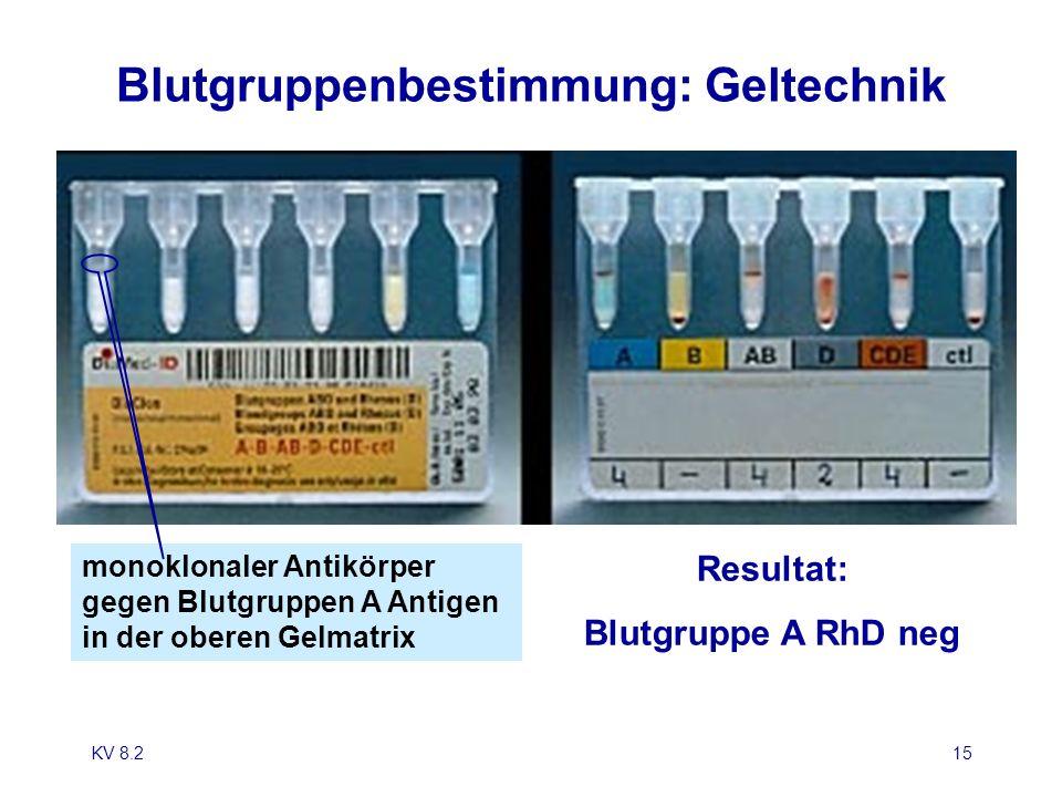 KV 8.215 Blutgruppenbestimmung: Geltechnik Resultat: Blutgruppe A RhD neg monoklonaler Antikörper gegen Blutgruppen A Antigen in der oberen Gelmatrix