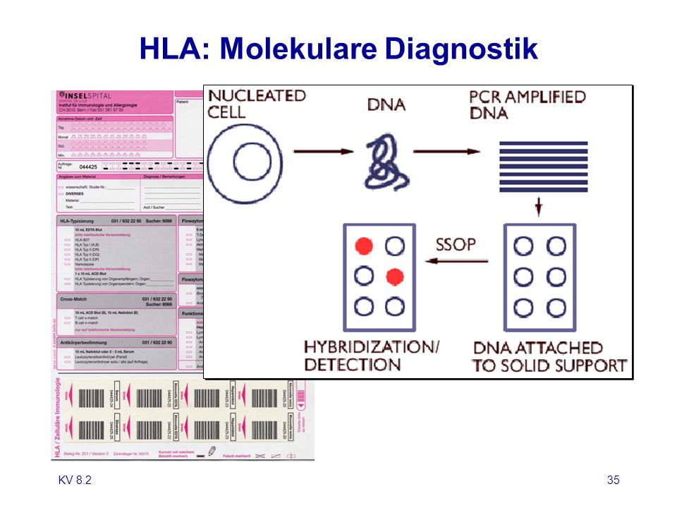 KV 8.235 HLA: Molekulare Diagnostik