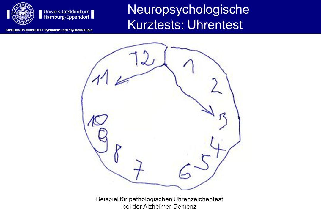 Klinik und Poliklinik für Psychiatrie und Psychotherapie Beispiel für pathologischen Uhrenzeichentest bei der Alzheimer-Demenz Neuropsychologische Kur