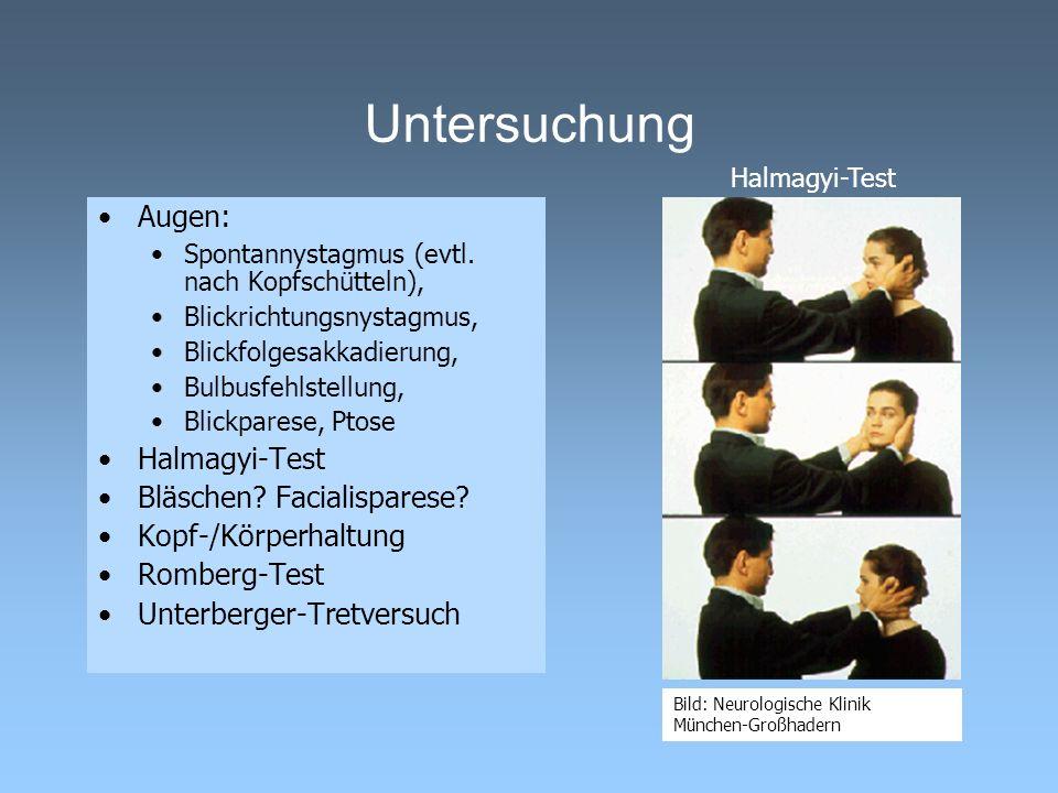 Untersuchung Augen: Spontannystagmus (evtl. nach Kopfschütteln), Blickrichtungsnystagmus, Blickfolgesakkadierung, Bulbusfehlstellung, Blickparese, Pto