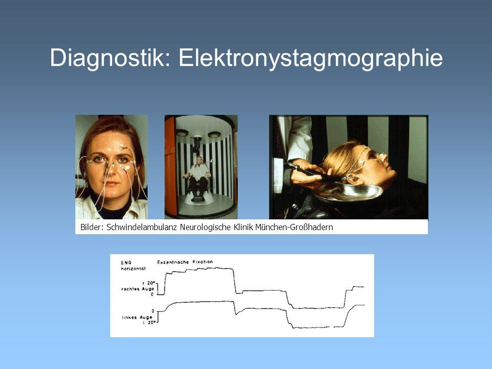 Diagnostik: Elektronystagmographie Bilder: Schwindelambulanz Neurologische Klinik München-Großhadern