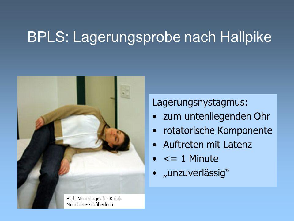 BPLS: Lagerungsprobe nach Hallpike Lagerungsnystagmus: zum untenliegenden Ohr rotatorische Komponente Auftreten mit Latenz <= 1 Minute unzuverlässig B