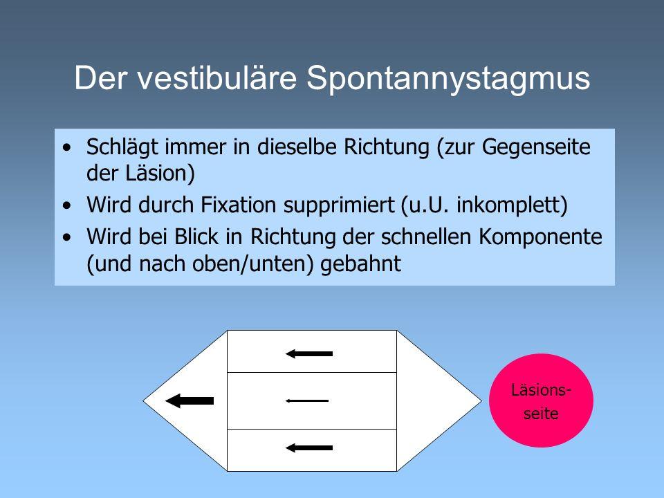 Der vestibuläre Spontannystagmus Schlägt immer in dieselbe Richtung (zur Gegenseite der Läsion) Wird durch Fixation supprimiert (u.U. inkomplett) Wird