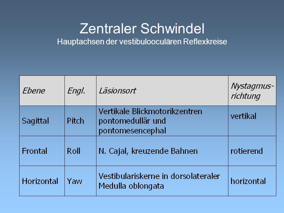 Zentraler Schwindel Hauptachsen der vestibulooculären Reflexkreise