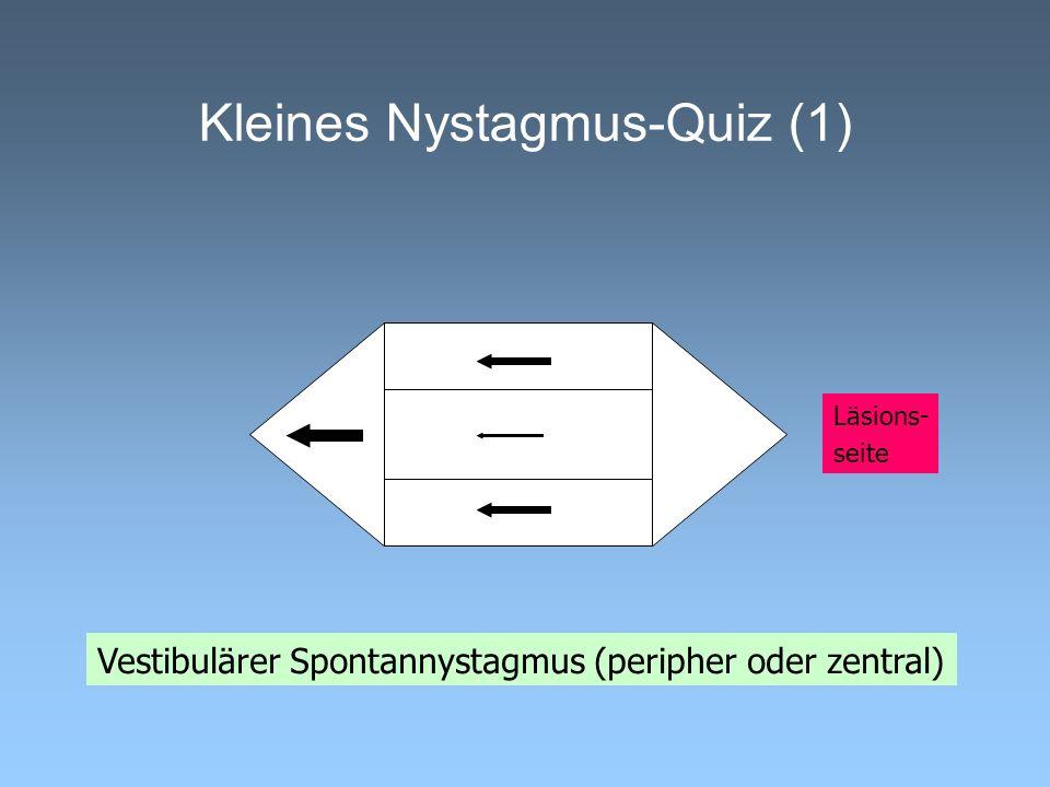 Kleines Nystagmus-Quiz (1) Vestibulärer Spontannystagmus (peripher oder zentral) Läsions- seite