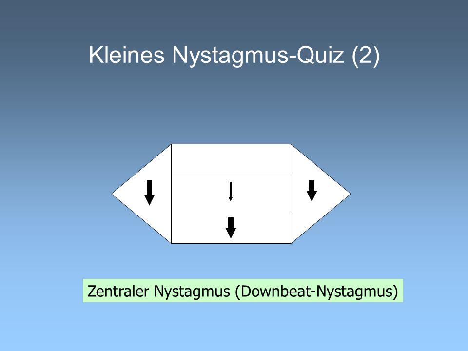 Kleines Nystagmus-Quiz (2) Zentraler Nystagmus (Downbeat-Nystagmus)