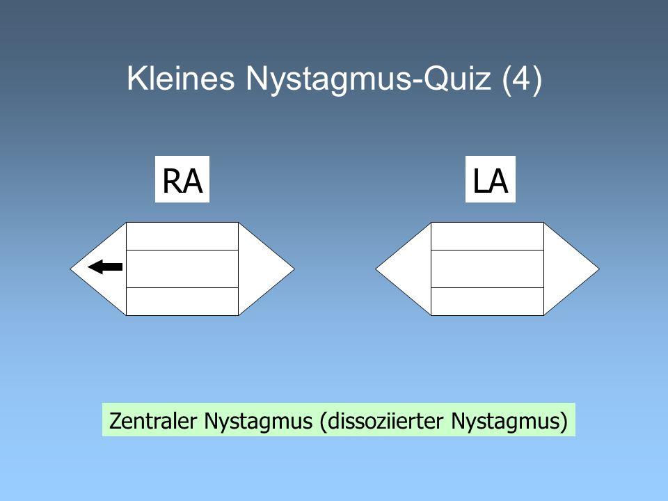 Kleines Nystagmus-Quiz (4) Zentraler Nystagmus (dissoziierter Nystagmus) RALA