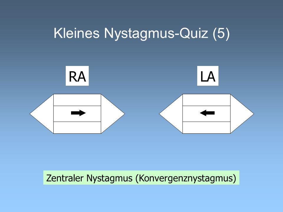 Kleines Nystagmus-Quiz (5) Zentraler Nystagmus (Konvergenznystagmus) RALA