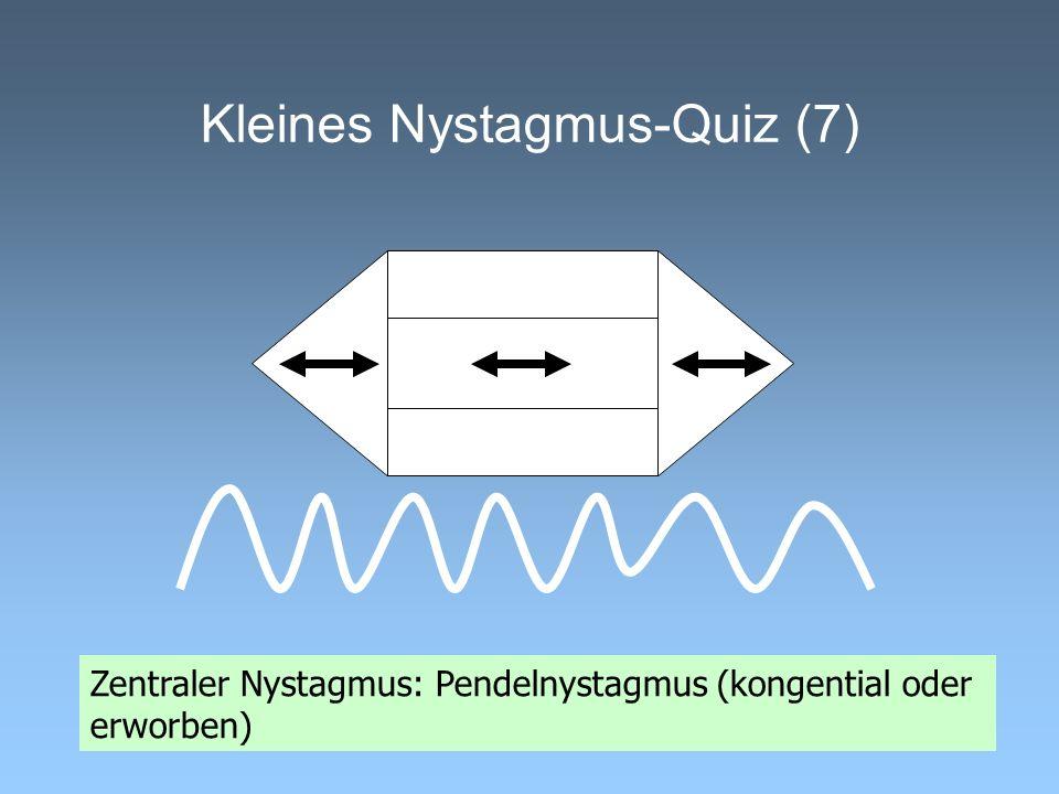 Kleines Nystagmus-Quiz (7) Zentraler Nystagmus: Pendelnystagmus (kongential oder erworben)