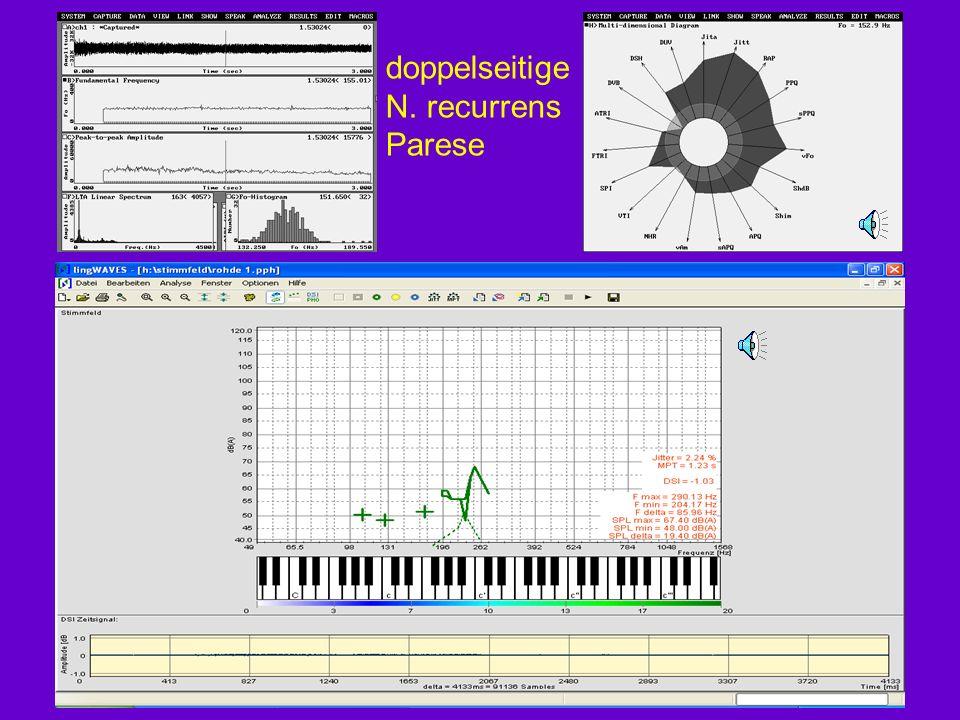 Beispiele zur Stimmanalyse MDVP multi dimensional voice program* Stimmfeld – Phonetogramm MSP motor speech profile –Diadochokinese –Formantübergänge –Intonation * Siehe Script, auch für folgende Darstellungen