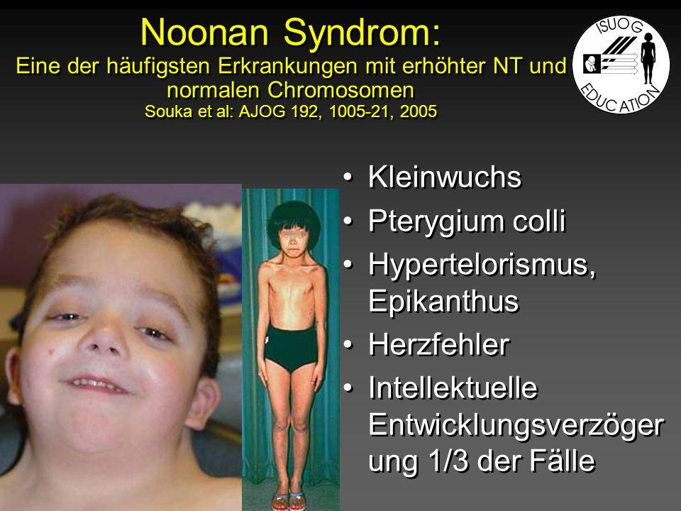 Noonan Syndrom: Eine der häufigsten Erkrankungen mit erhöhter NT und normalen Chromosomen Souka et al: AJOG 192, 1005-21, 2005 Kleinwuchs Pterygium co