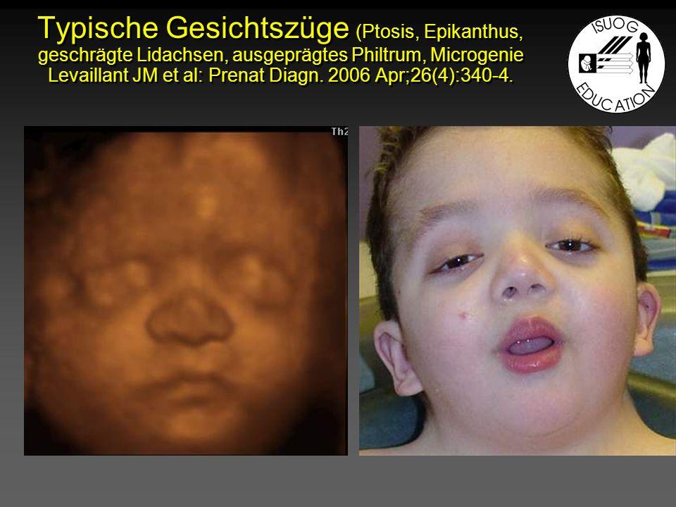 Typische Gesichtszüge (Ptosis, Epikanthus, geschrägte Lidachsen, ausgeprägtes Philtrum, Microgenie Levaillant JM et al: Prenat Diagn. 2006 Apr;26(4):3