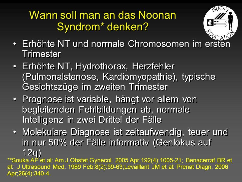 Wann soll man an das Noonan Syndrom* denken? Erhöhte NT und normale Chromosomen im ersten Trimester Erhöhte NT, Hydrothorax, Herzfehler (Pulmonalsteno