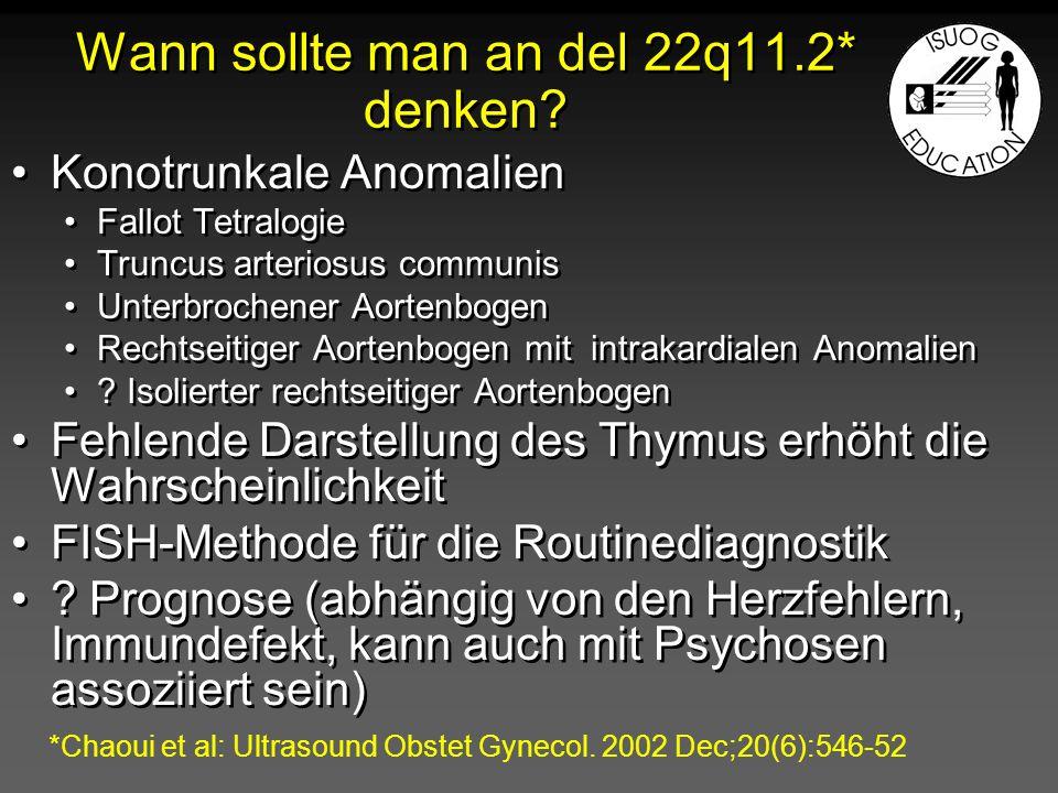 Wann sollte man an del 22q11.2* denken? Konotrunkale Anomalien Fallot Tetralogie Truncus arteriosus communis Unterbrochener Aortenbogen Rechtseitiger