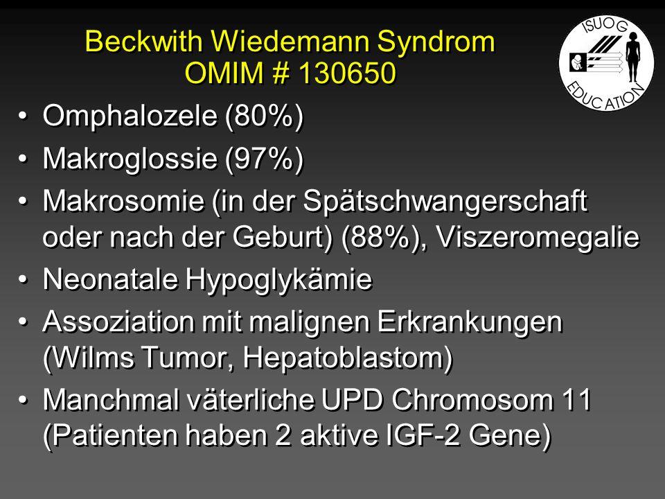 Beckwith Wiedemann Syndrom OMIM # 130650 Omphalozele (80%) Makroglossie (97%) Makrosomie (in der Spätschwangerschaft oder nach der Geburt) (88%), Visz