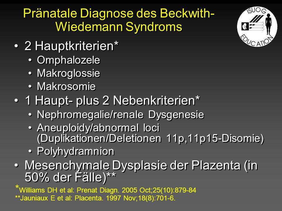 Pränatale Diagnose des Beckwith- Wiedemann Syndroms 2 Hauptkriterien* Omphalozele Makroglossie Makrosomie 1 Haupt- plus 2 Nebenkriterien* Nephromegali