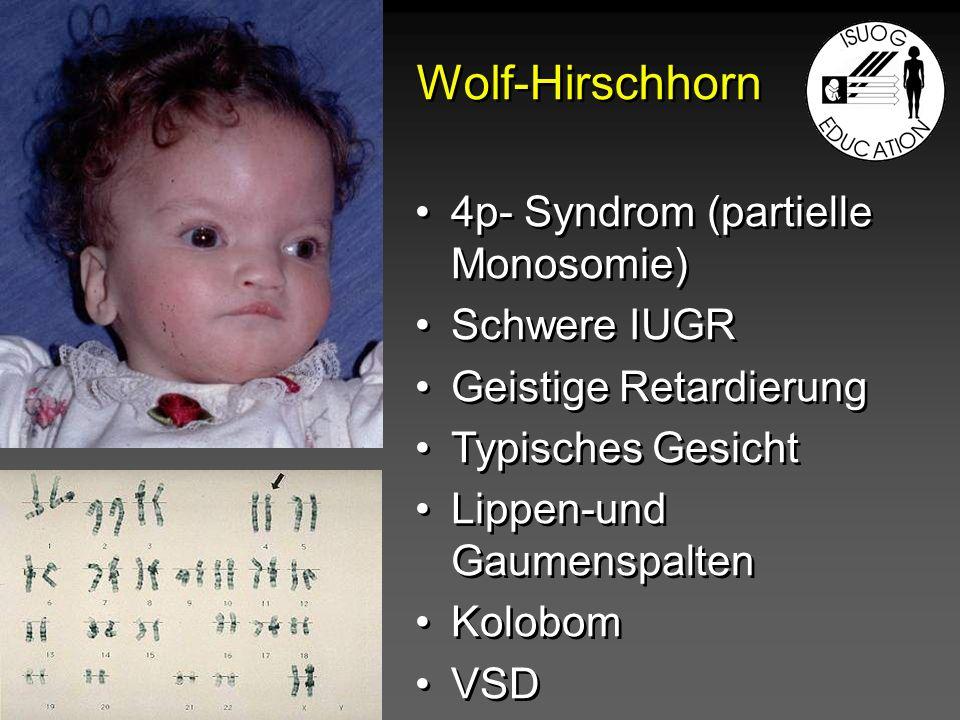 Wolf-Hirschhorn 4p- Syndrom (partielle Monosomie) Schwere IUGR Geistige Retardierung Typisches Gesicht Lippen-und Gaumenspalten Kolobom VSD 4p- Syndro