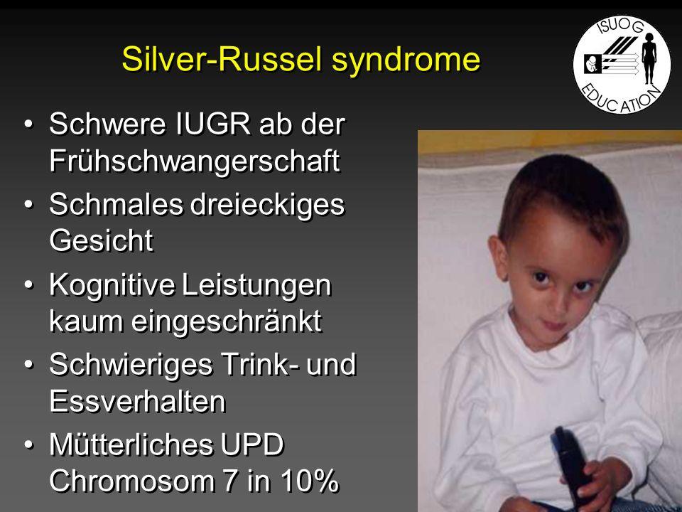 Silver-Russel syndrome Schwere IUGR ab der Frühschwangerschaft Schmales dreieckiges Gesicht Kognitive Leistungen kaum eingeschränkt Schwieriges Trink-