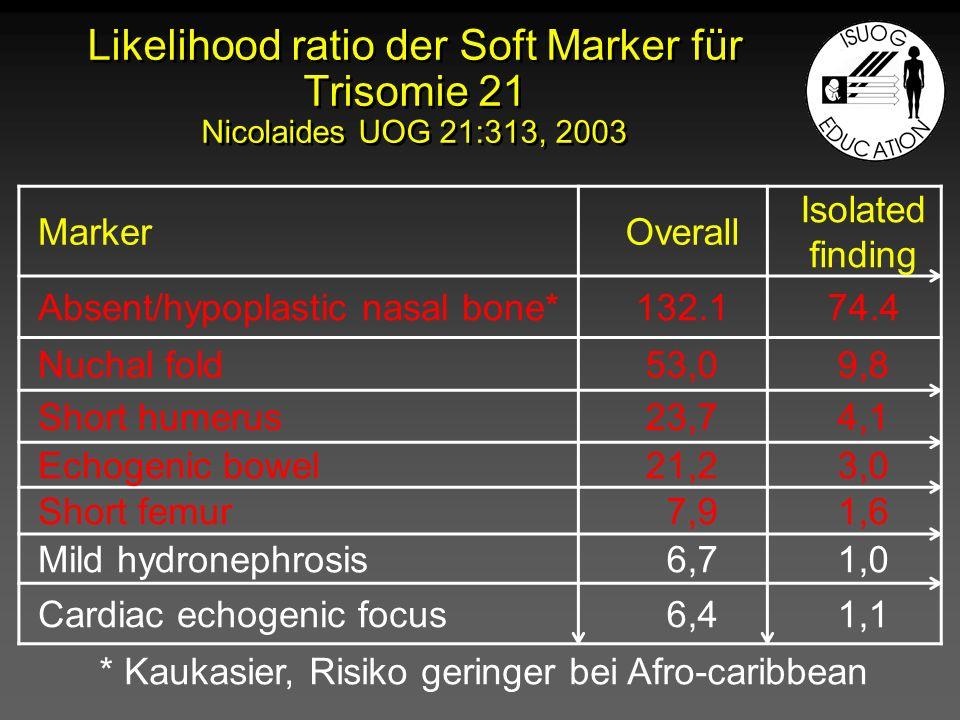 Likelihood ratio der Soft Marker für Trisomie 21 Nicolaides UOG 21:313, 2003 MarkerOverall Isolated finding Absent/hypoplastic nasal bone*132.174.4 Nu