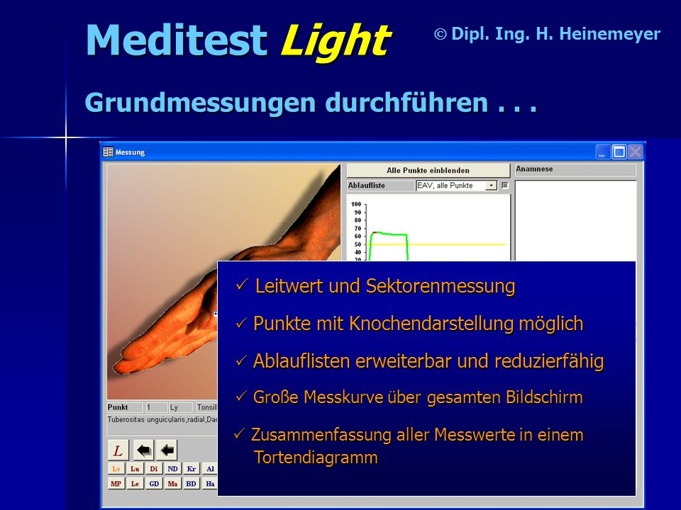 Meditest Light Dipl. Ing. H. Heinemeyer Grundmessungen durchführen... Leitwert und Sektorenmessung P PP Punkte mit Knochendarstellung möglich A AA Abl