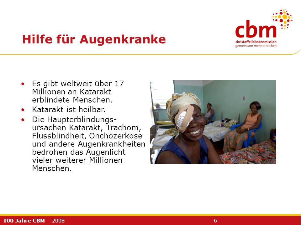 100 Jahre CBM 2008 6 Hilfe für Augenkranke Es gibt weltweit über 17 Millionen an Katarakt erblindete Menschen. Katarakt ist heilbar. Die Haupterblindu