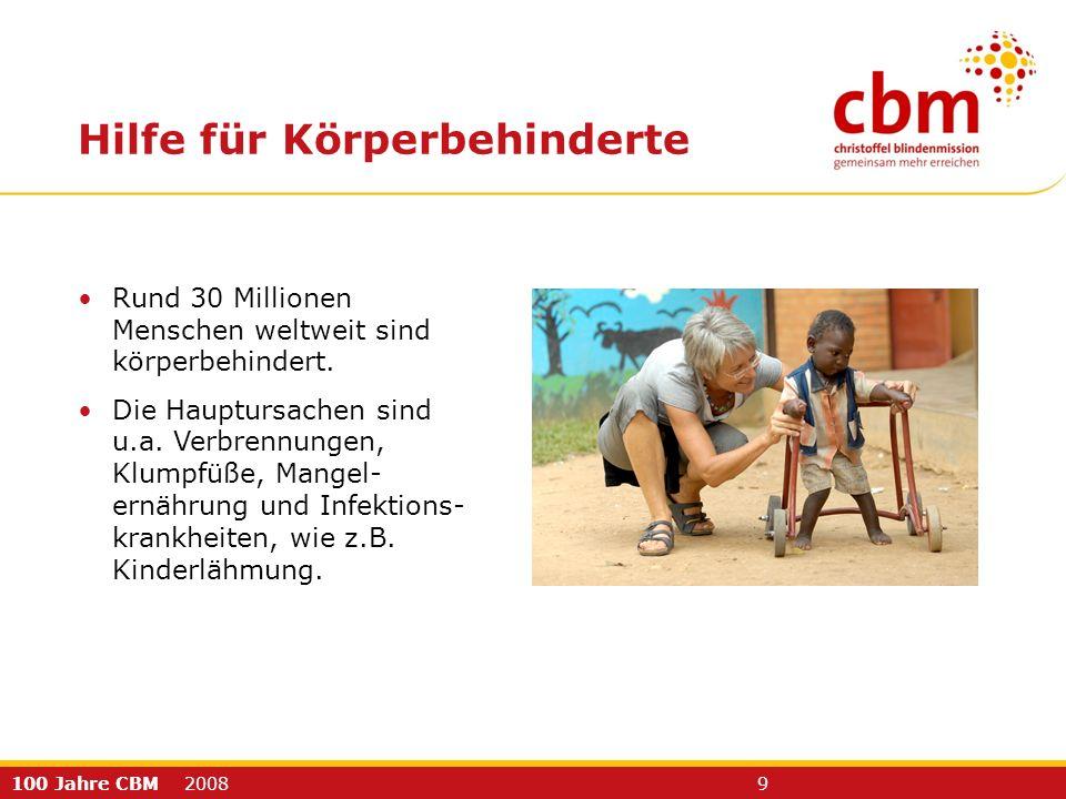 100 Jahre CBM 2008 9 Rund 30 Millionen Menschen weltweit sind körperbehindert. Die Hauptursachen sind u.a. Verbrennungen, Klumpfüße, Mangel- ernährung