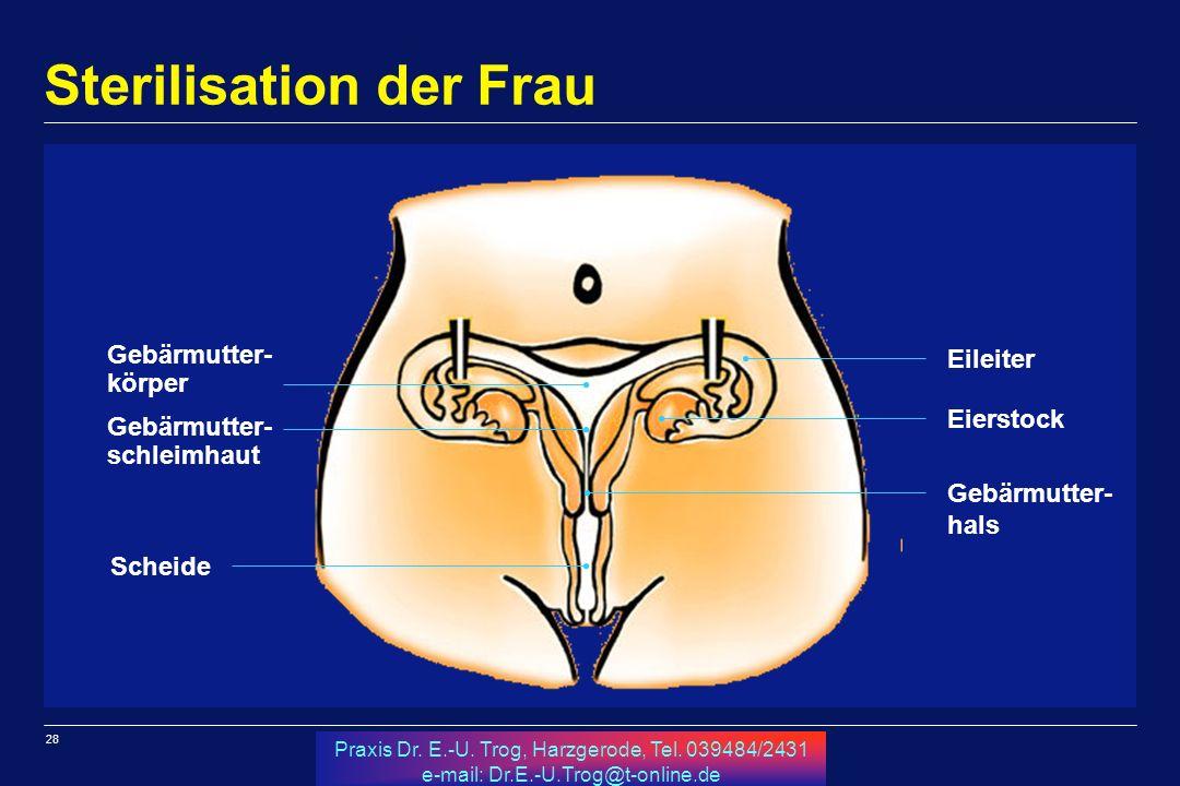 28 Praxis Dr. E.-U. Trog, Harzgerode, Tel. 039484/2431 e-mail: Dr.E.-U.Trog@t-online.de Sterilisation der Frau Scheide Gebärmutter- schleimhaut Gebärm