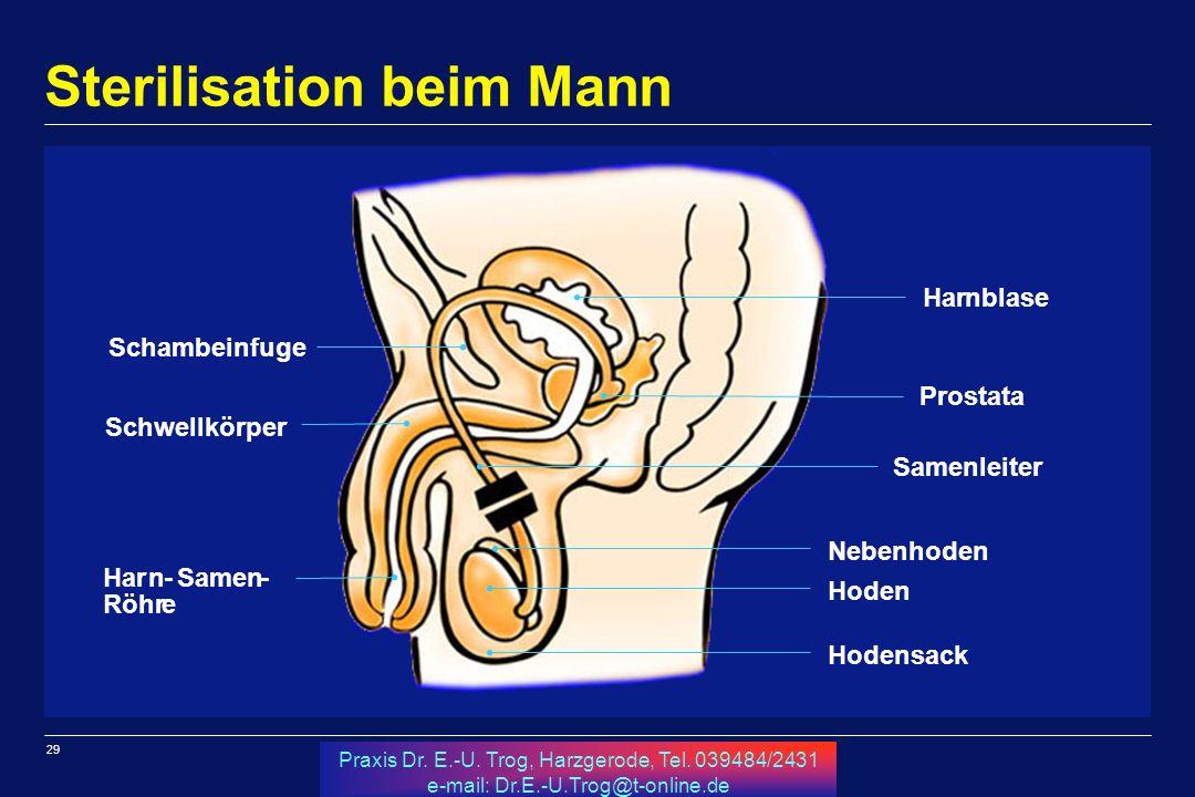 29 Praxis Dr. E.-U. Trog, Harzgerode, Tel. 039484/2431 e-mail: Dr.E.-U.Trog@t-online.de Sterilisation beim Mann a Harnblase Prostata Samenleiter Neben