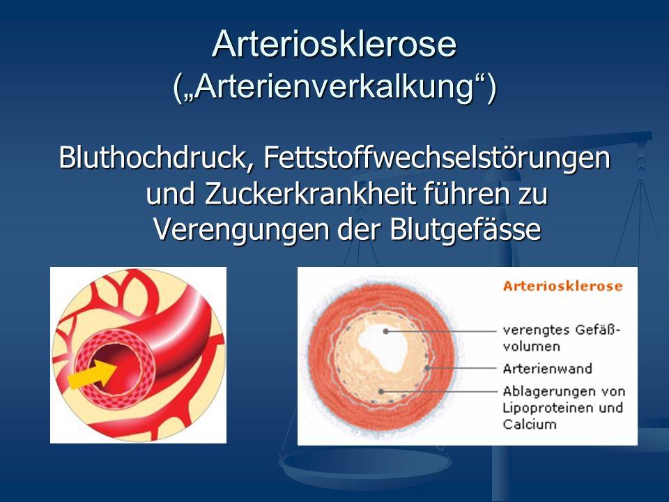 Arteriosklerose (Arterienverkalkung) Bluthochdruck, Fettstoffwechselstörungen und Zuckerkrankheit führen zu Verengungen der Blutgefässe
