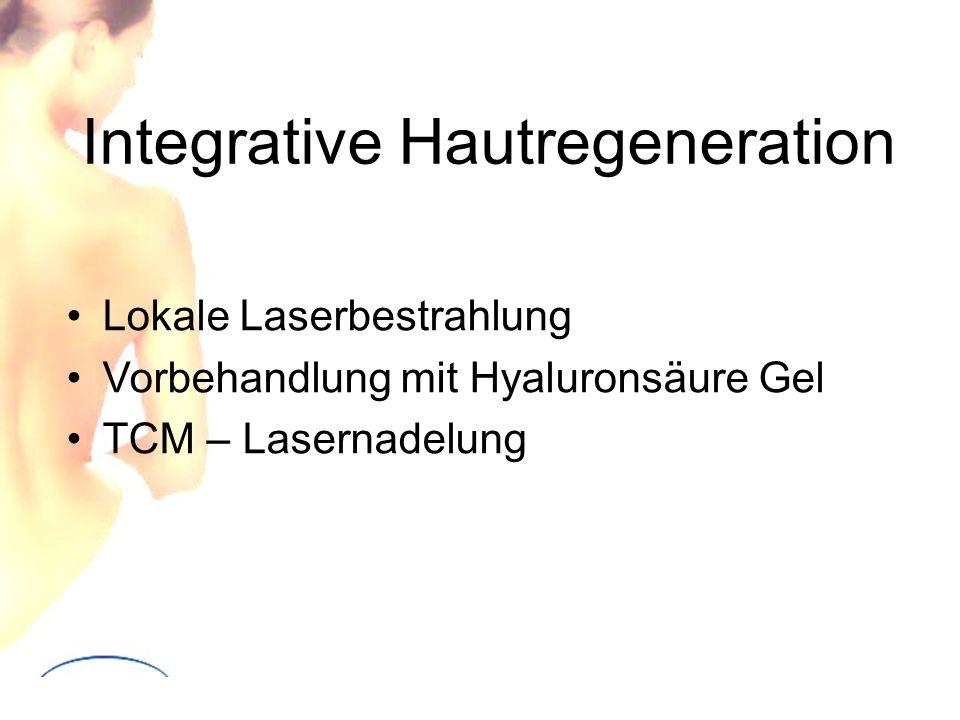 Integrative Hautregeneration Lokale Laserbestrahlung Vorbehandlung mit Hyaluronsäure Gel TCM – Lasernadelung
