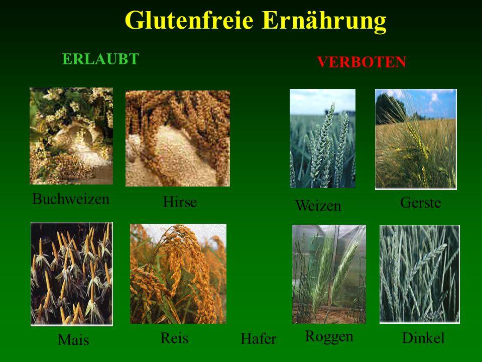 ERLAUBT VERBOTEN Buchweizen Hirse Weizen Gerste Mais Reis Roggen Dinkel Glutenfreie Ernährung Hafer