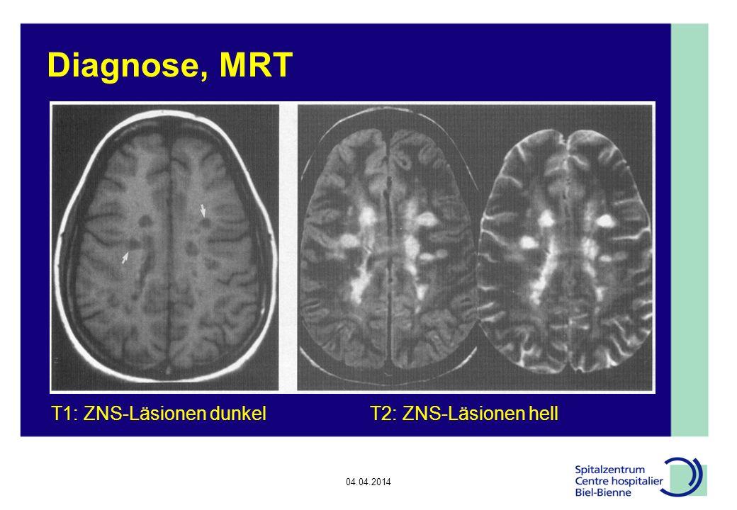 04.04.2014 Schlussfolgerung (1/3) In CH 10000 Patienten mit MS Akute Therapie des MS-Schubs mit Methylprednisolone iv (evtl.