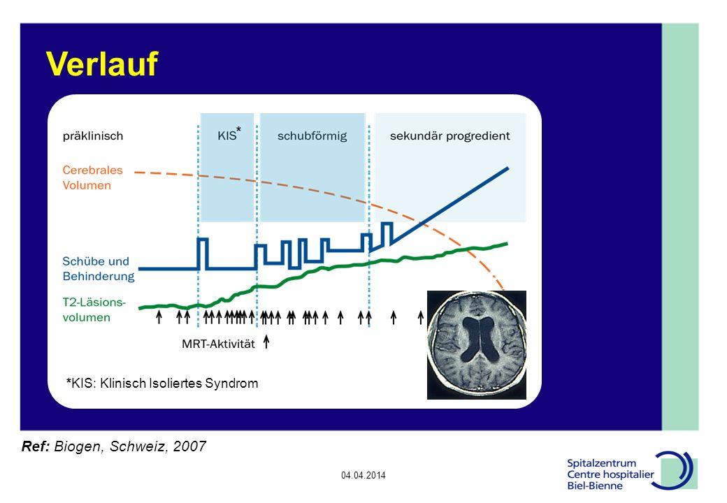 04.04.2014 Verlauf Ref: Biogen, Schweiz, 2007 *KIS: Klinisch Isoliertes Syndrom *