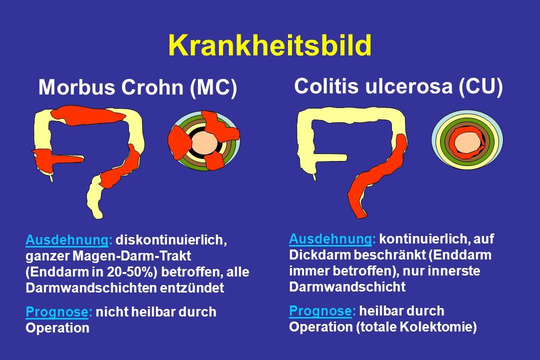 Krankheitsbild Ausdehnung: diskontinuierlich, ganzer Magen-Darm-Trakt (Enddarm in 20-50%) betroffen, alle Darmwandschichten entzündet Prognose: nicht heilbar durch Operation Ausdehnung: kontinuierlich, auf Dickdarm beschränkt (Enddarm immer betroffen), nur innerste Darmwandschicht Prognose: heilbar durch Operation (totale Kolektomie) Morbus Crohn (MC) Colitis ulcerosa (CU)