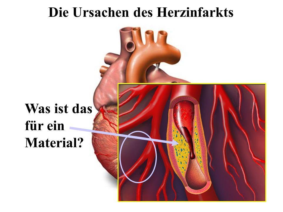 Der HerzinfarktDie Ursachen des Herzinfarkts Was ist das für ein Material?