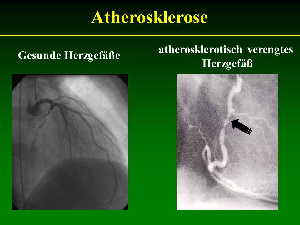 Gesunde Herzgefäße atherosklerotisch verengtes Herzgefäß Atherosklerose