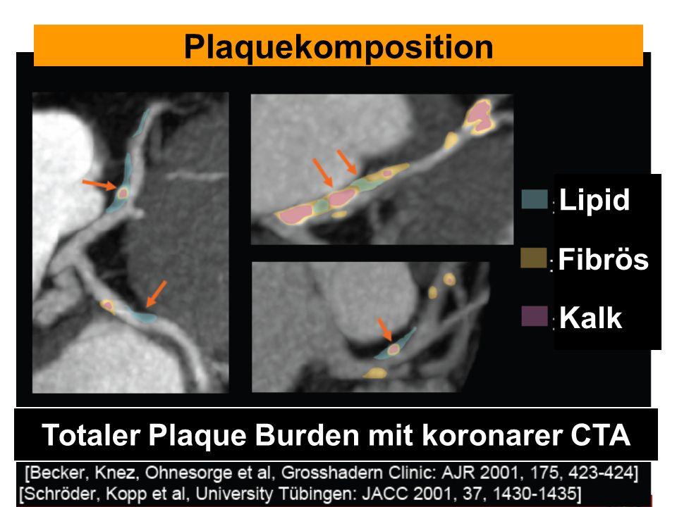 Lipid Fibrös Kalk Totaler Plaque Burden mit koronarer CTA Plaquekomposition