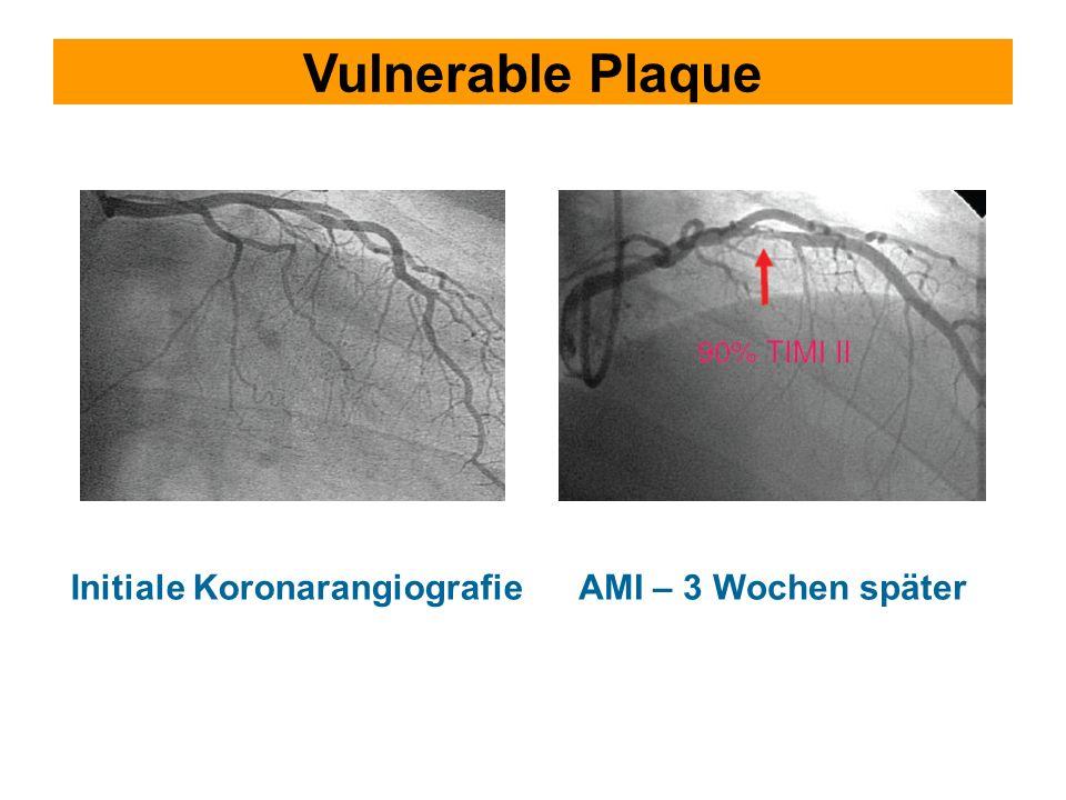 Vulnerable Plaque Initiale Koronarangiografie AMI – 3 Wochen später