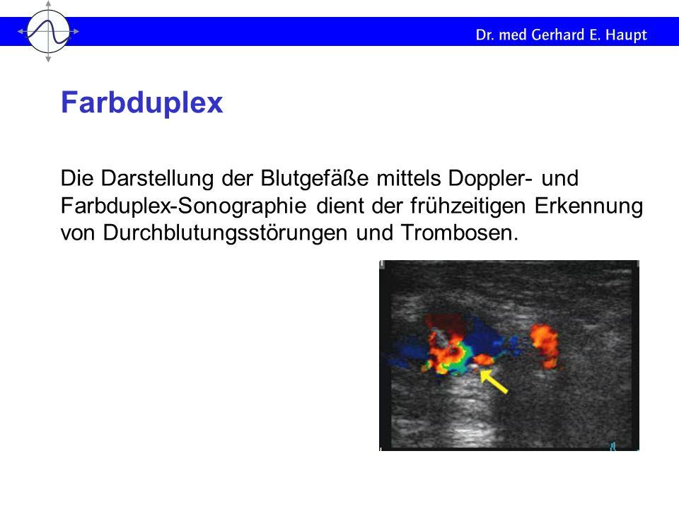 Die Darstellung der Blutgefäße mittels Doppler- und Farbduplex-Sonographie dient der frühzeitigen Erkennung von Durchblutungsstörungen und Trombosen.