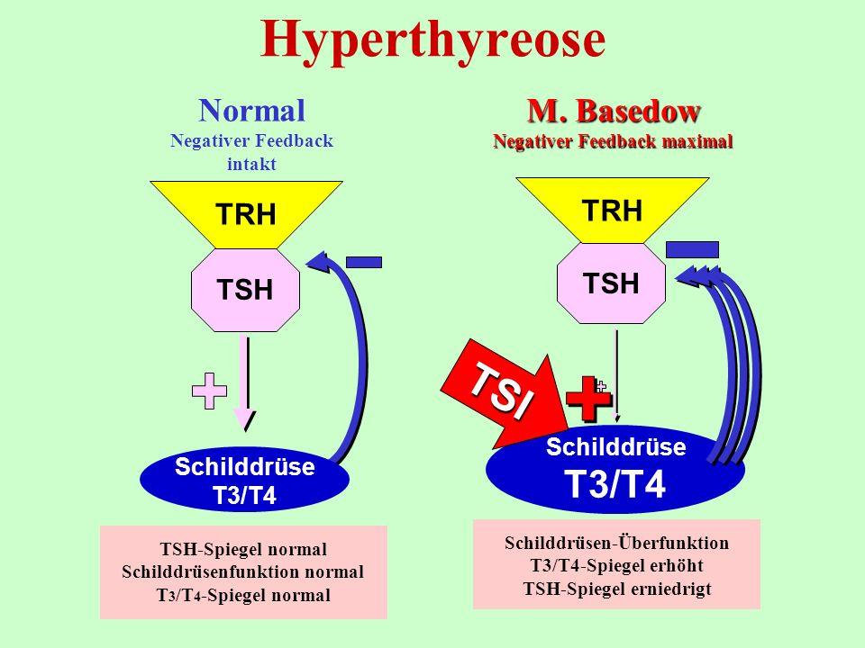 TSH TRH M. Basedow Negativer Feedback maximal Schilddrüsen-Überfunktion T3/T4-Spiegel erhöht TSH-Spiegel erniedrigt Schilddrüse T3/T4 TSI Hyperthyreos