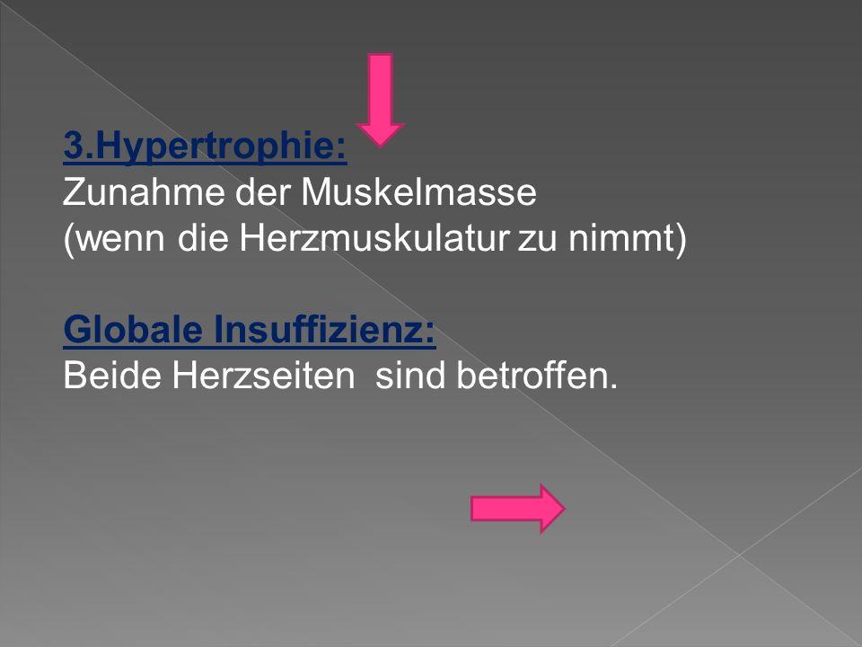 3.Hypertrophie: Zunahme der Muskelmasse (wenn die Herzmuskulatur zu nimmt) Globale Insuffizienz: Beide Herzseiten sind betroffen.