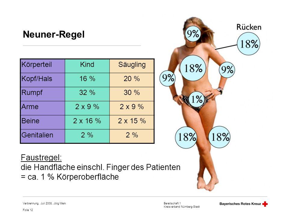 Bereitschaft 1 Kreisverband Nürnberg-Stadt Folie 12 Verbrennung, Juli 2008, Jörg Weik Neuner-Regel KörperteilKindSäugling Kopf/Hals16 %20 % Rumpf32 %3