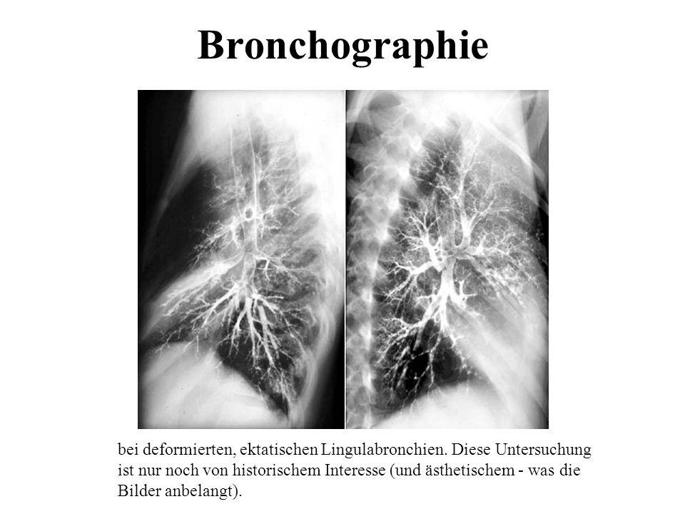 Bronchographie bei deformierten, ektatischen Lingulabronchien. Diese Untersuchung ist nur noch von historischem Interesse (und ästhetischem - was die