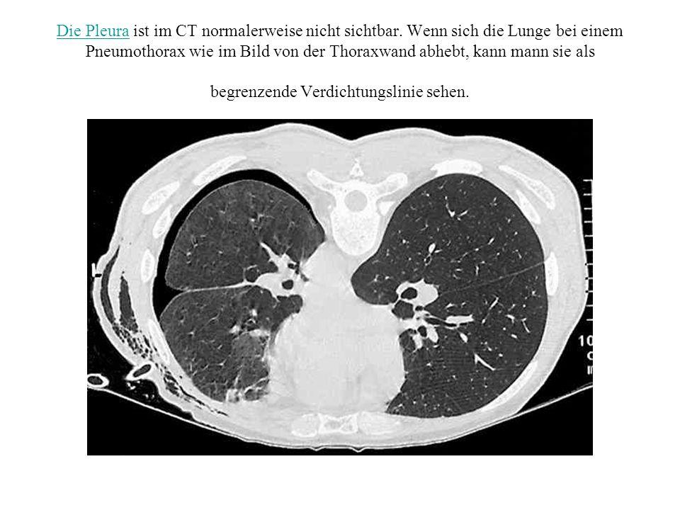 Die PleuraDie Pleura ist im CT normalerweise nicht sichtbar. Wenn sich die Lunge bei einem Pneumothorax wie im Bild von der Thoraxwand abhebt, kann ma