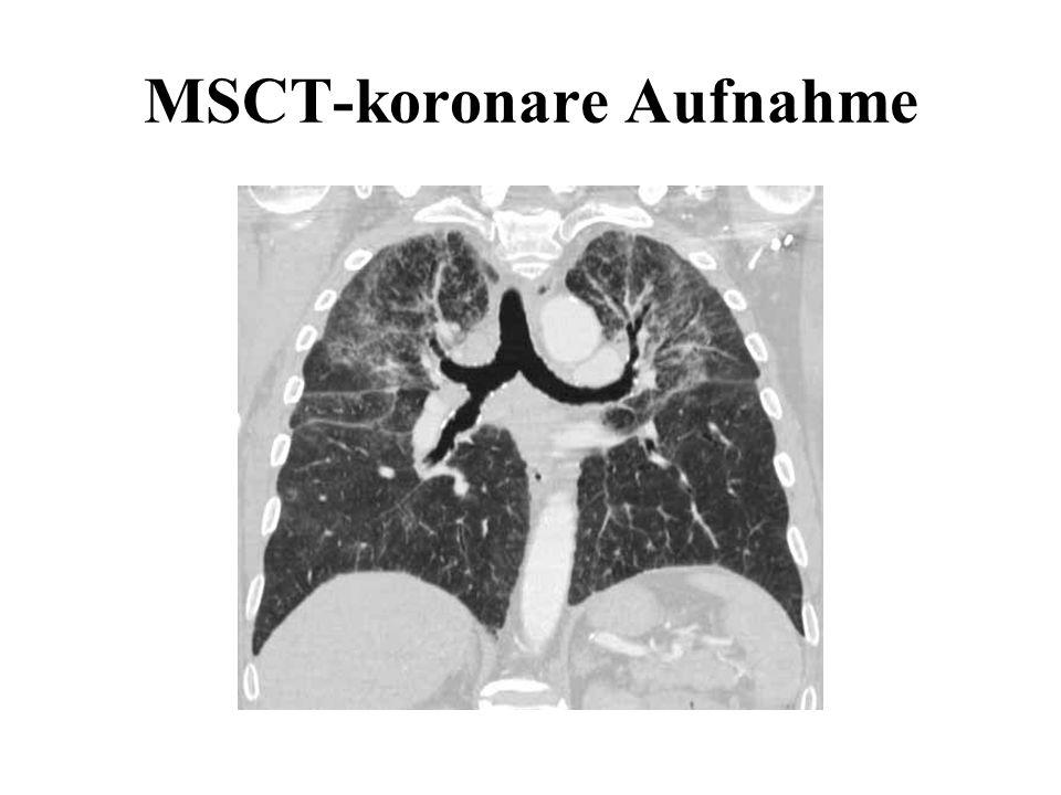 MSCT-koronare Aufnahme