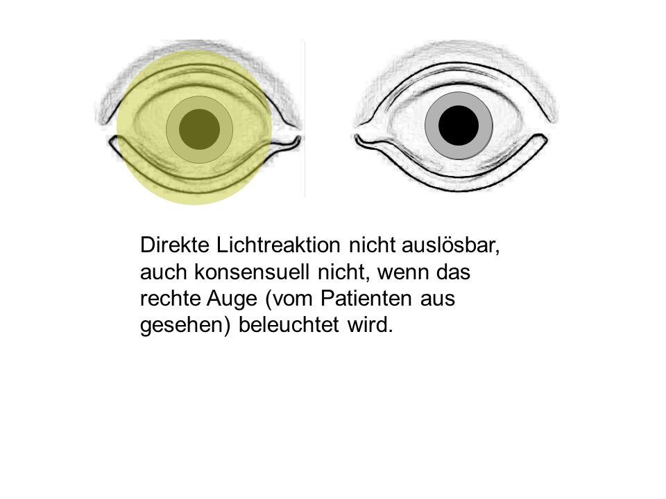 Direkte Lichtreaktion nicht auslösbar, auch konsensuell nicht, wenn das rechte Auge (vom Patienten aus gesehen) beleuchtet wird.