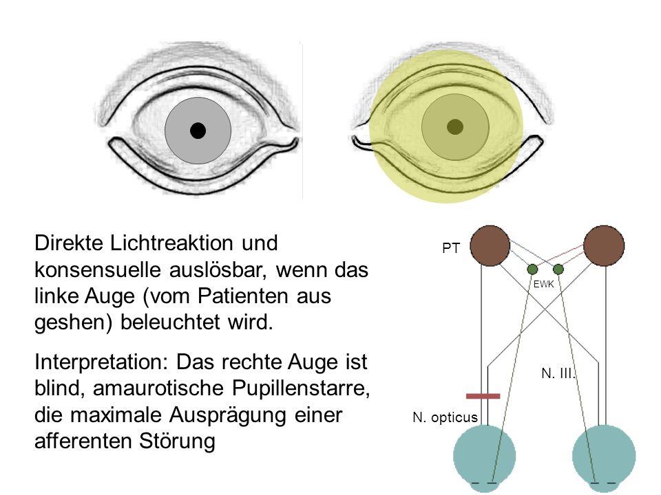 Direkte Lichtreaktion und konsensuelle auslösbar, wenn das linke Auge (vom Patienten aus geshen) beleuchtet wird.