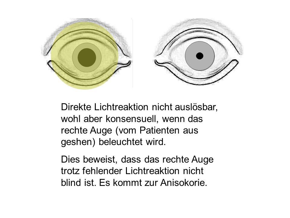 Direkte Lichtreaktion nicht auslösbar, wohl aber konsensuell, wenn das rechte Auge (vom Patienten aus geshen) beleuchtet wird.