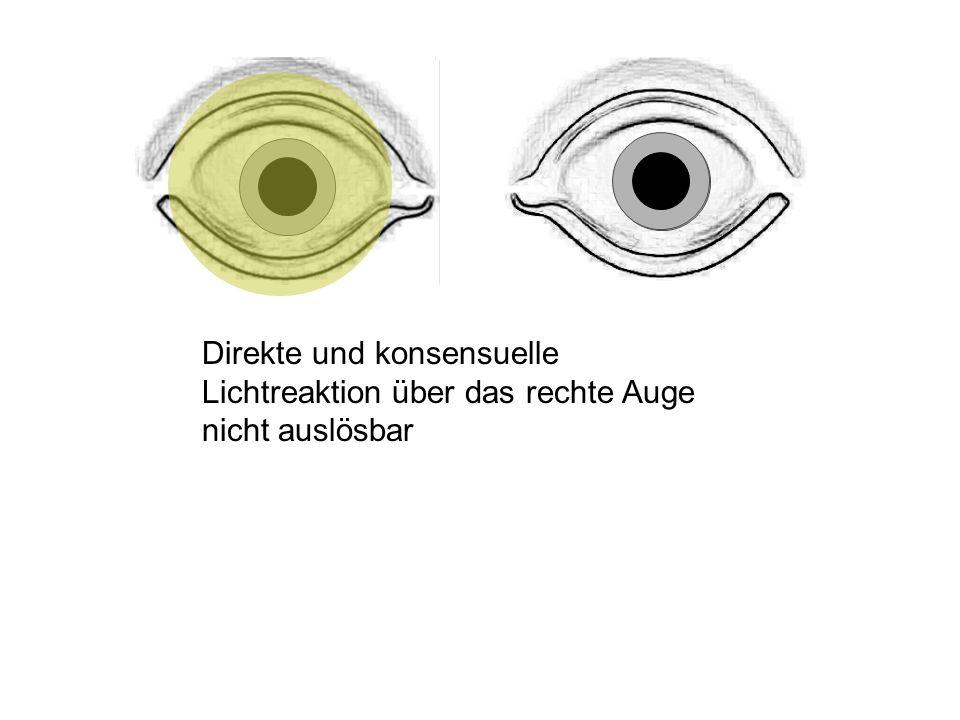 Direkte und konsensuelle Lichtreaktion über das rechte Auge nicht auslösbar