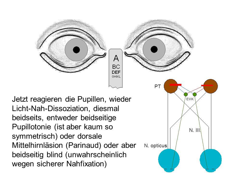 Jetzt reagieren die Pupillen, wieder Licht-Nah-Dissoziation, diesmal beidseits, entweder beidseitige Pupillotonie (ist aber kaum so symmetrisch) oder dorsale Mittelhirnläsion (Parinaud) oder aber beidseitig blind (unwahrscheinlich wegen sicherer Nahfixation) PT EWK N.